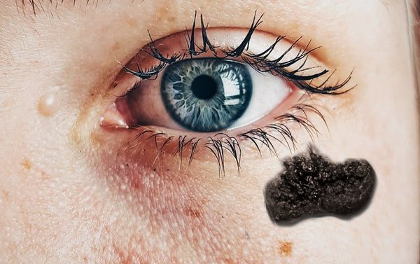 Black fungus in face